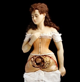 Female Austrian Wax Teaching Model 1850. Creepy, isn't she?