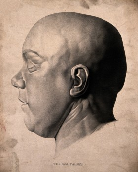 Death mask of Dr William Palmer... after the hanging!